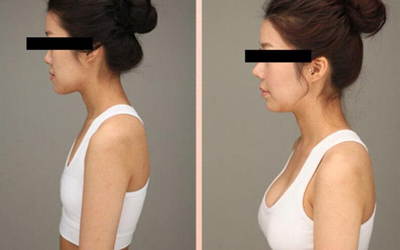 Упражнения для женщин для увеличения груди