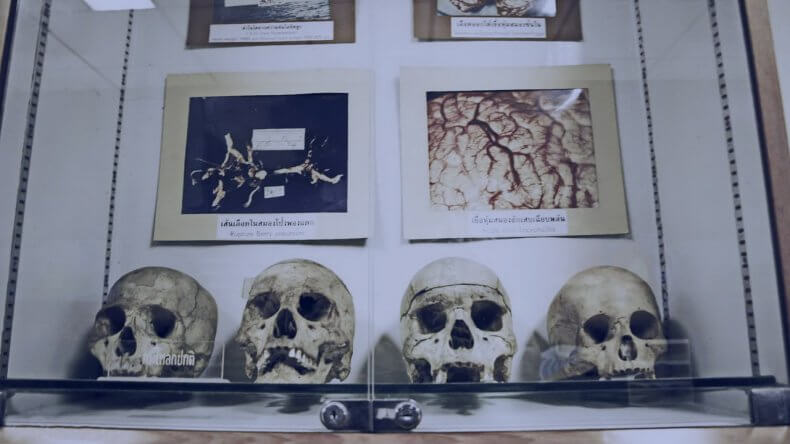 Медицинский музей Сирирай в Бангкоке